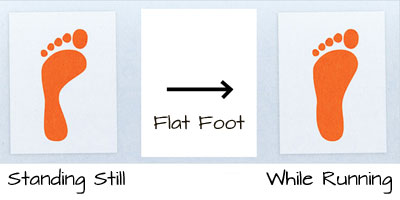 flat foot while running